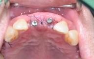 涂先生0400211_1030630_215841_植牙治療後