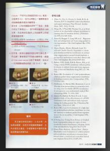 介紹目前全世界兩家代表性製造商 資料來源:台灣牙醫界