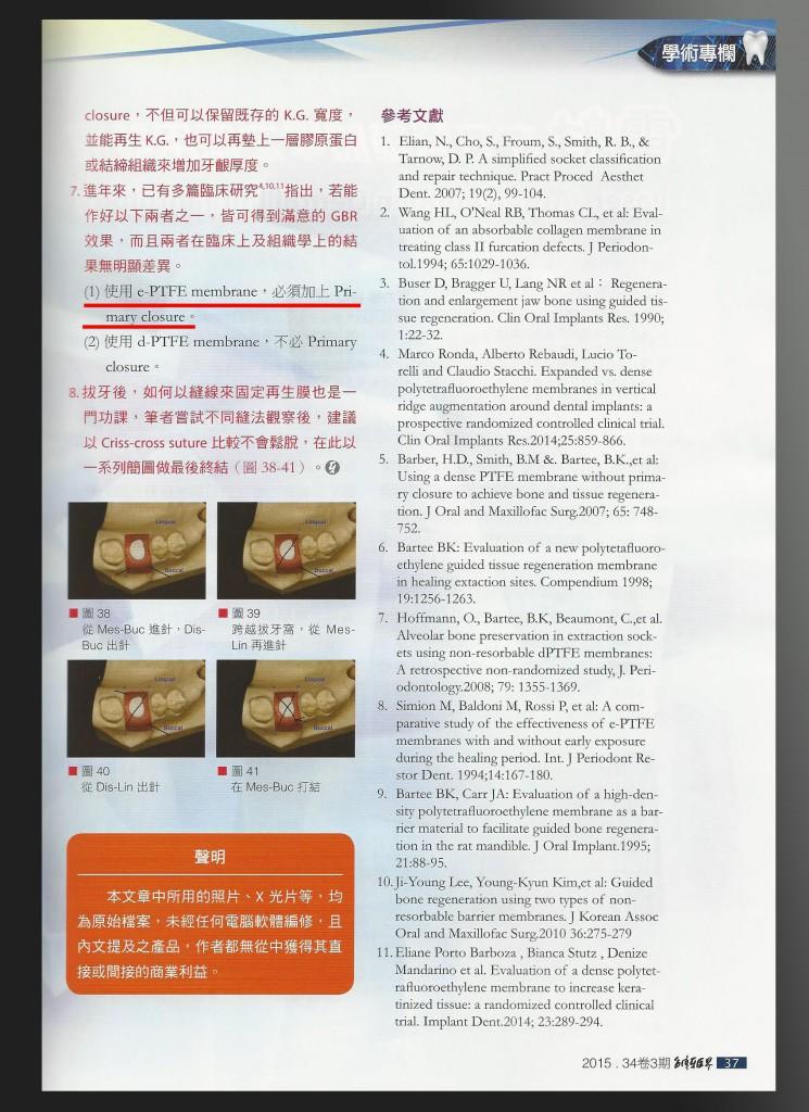 介紹d-PTFE和e-PTFE優缺點 資料來源:台灣牙醫界