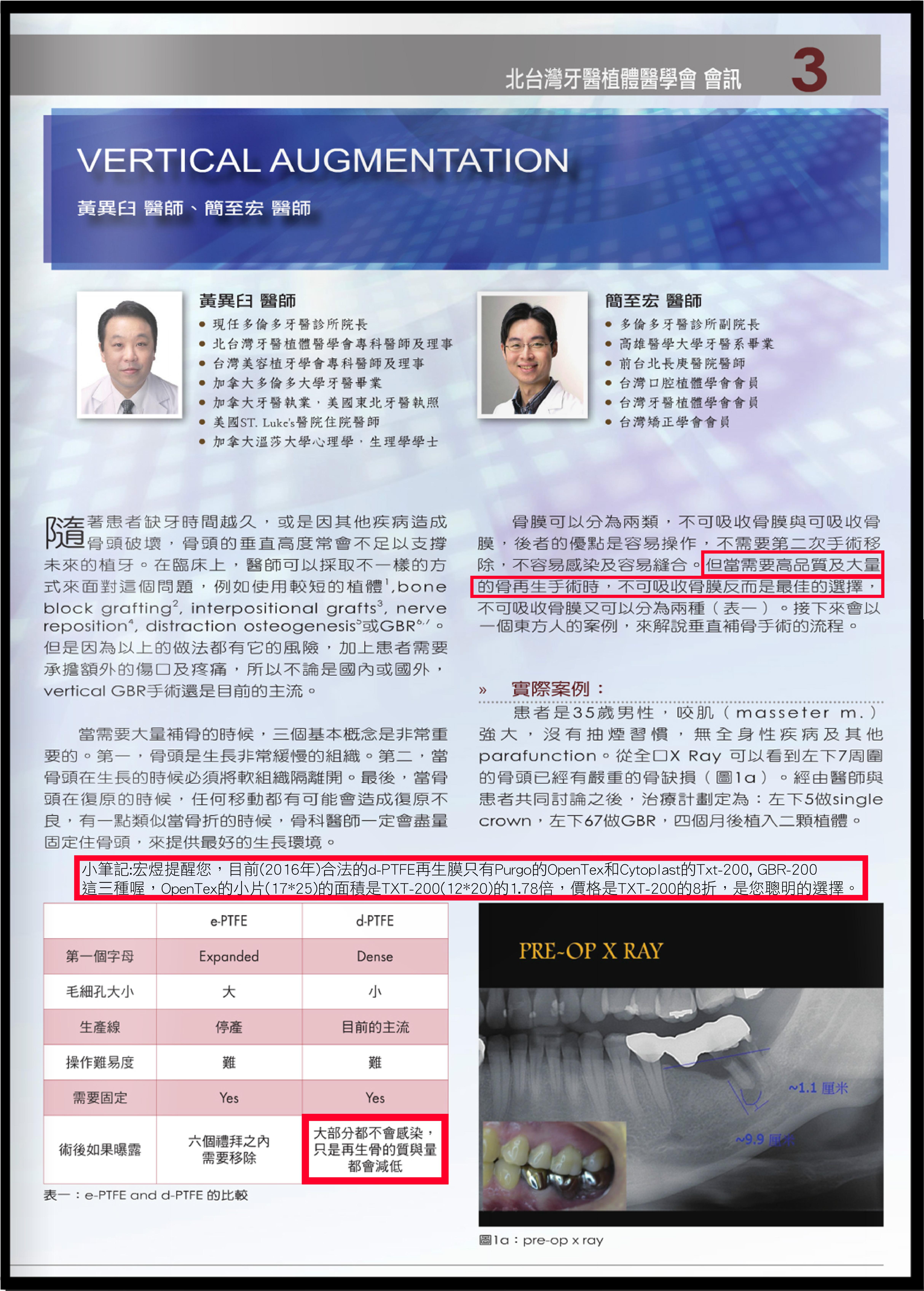 介紹d-PTFE和e-PTFE優缺點 資料來源:北台灣牙醫植體學會會訊 黃異臼 簡至宏